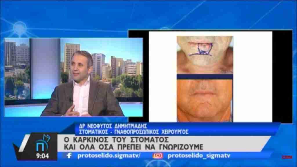 Δρ. Νεόφυτος Χ. Δημητριάδης – «Καρκίνος του Στόματος και όλα όσα πρέπει να γνωρίζουμε»